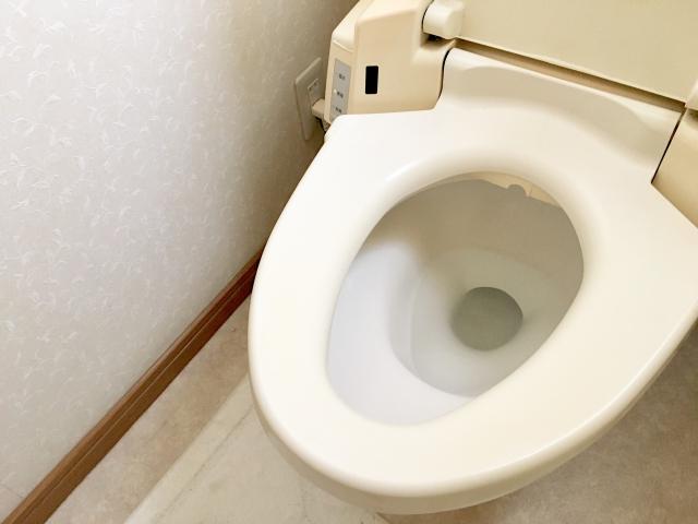 トイレの黒ずみ汚れの原因とお掃除方法