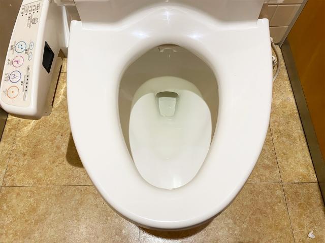 トイレのノズルにはどんな汚れがつくの?